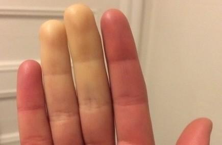 un-Sexy fingers