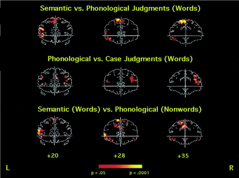 diagram showing activation of prefrontal cortex