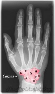 carpal bones shown in x ray
