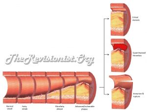 diagram showing atherosclerosis and its cross sections