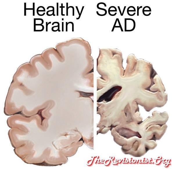 Healthy Brain Vs Severe AD brain