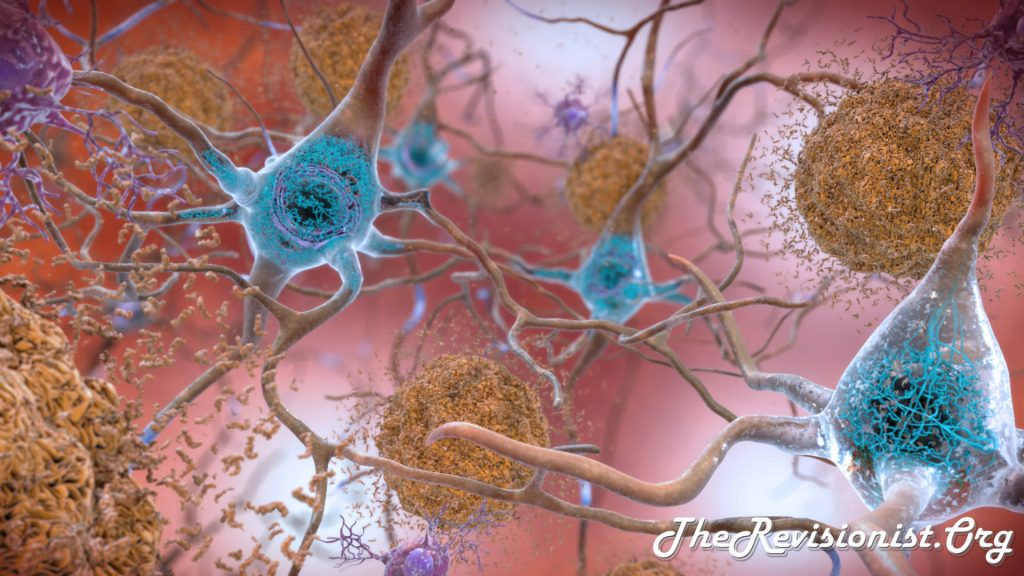 illustration of beta amyloid plaques and tau tangles