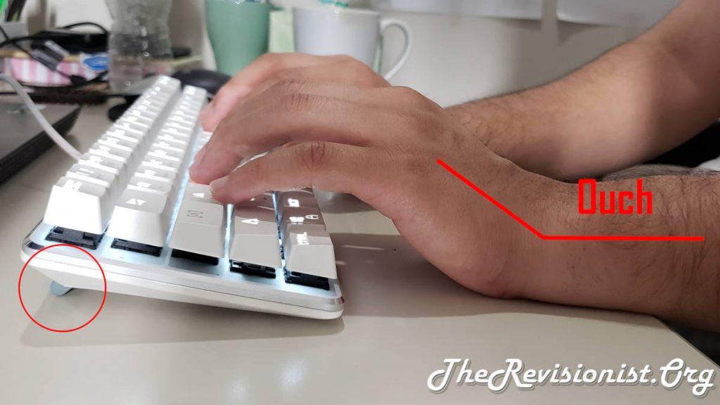Positive Tilt Keyboard with Feet Up & RSI Cause illustration